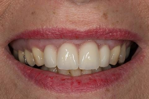 Figure 34. Maxillary immediate denture fitted one week after the extraction appointment. Schottlander Enigmalife teeth.