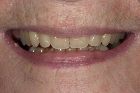 Figure 80. Visit 5 Fitted definitive denture - Schottlander Enigmalife teeth