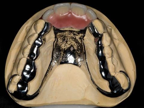 Figure 101. Maxillary cobalt chromium framework trial insertion with teeth fitted into wax. This was taken to the mouth and assessed by the patient to verify the aesthetics and approve finishing the partial denture.
