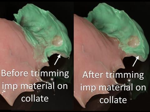 Figure 54. Immediate denture laboratory reline - part 1 with light bodied silicone impression material (Doric Flo light - Schottlander). Collet trimmed to allow flow of alginate in the over impression - part 2.
