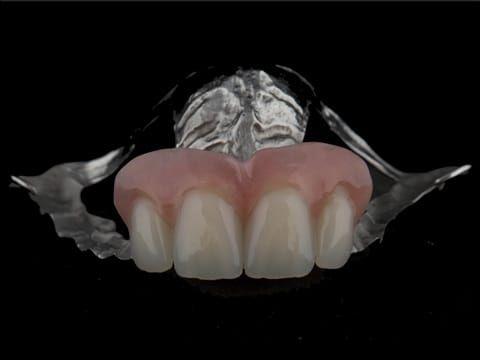 Figure 107. Finished cobalt chromium based maxillary partial denture with Schottlander Enigmalife teeth.