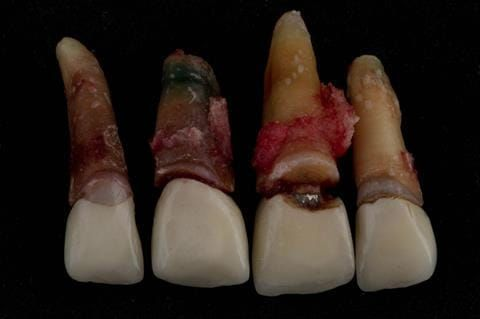 Figure 29. Extracted upper four incisors