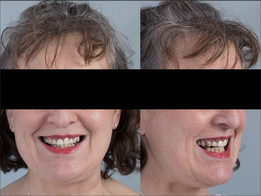 Figure 1 a & b. Pre-treatment showing high smile line and aesthetically poor upper incisors