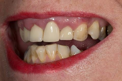 Figure 4. Pre-treatment showing high smile line and aesthetically poor upper incisors