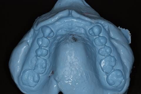 Figure 82. Maxillary special tray definitive impression made in alginate recording depth of the anterior sulcus above the upper 2-2.