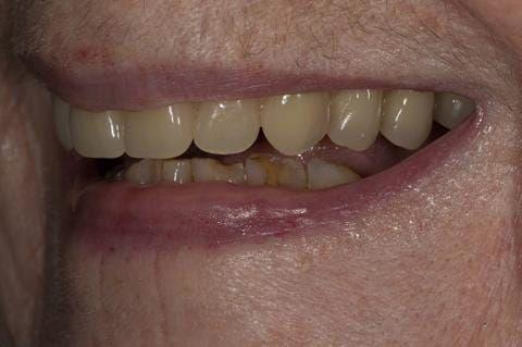 Figure 82.Visit 5 Fitted definitive denture - Schottlander Enigmalife teeth