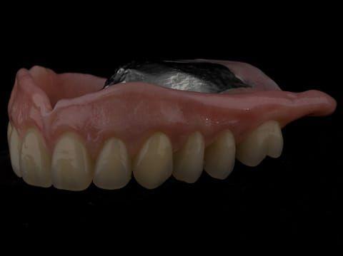 Figure 65. Definitive denture finished - Schottlander Enigmalife teeth