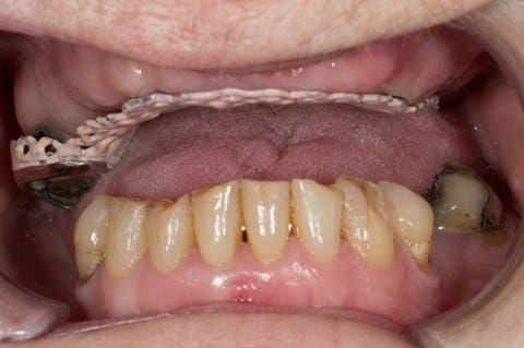 Figure 49. Visit 3 - Cobalt chromium base reinforcement for the maxillary partial denture - Chris Hesketh, Bespoke Frameworks, Chorley, UK..