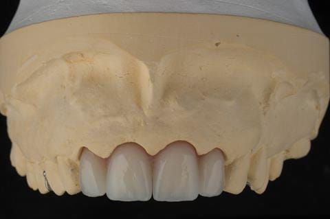 Figure 22. Maxillary cast with immediate partial denture processed and fitted. Schottlander Enigmalife teeth.