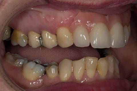 Figure 72. Immediate denture at 11 months post extraction. Ready to start making definitive cobalt chromium based partial denture.