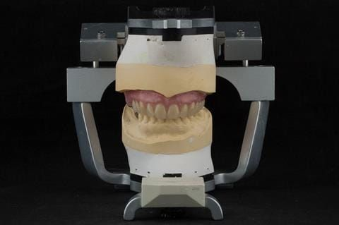 """Figure 71. Definitive denture finished with Molloplast B """"O"""" ring around UR7."""