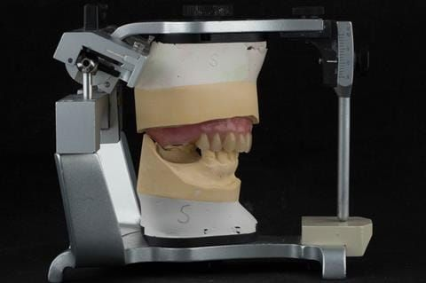 """Figure 69. Definitive denture finished with Molloplast B """"O"""" ring around UR7."""