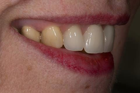 Figure 67. Relined immediate denture replacing maxillary incisors fitted 5 months after extraction.