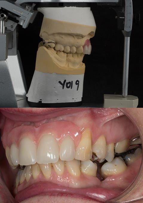Figure 115. Fitted cobalt chromium based maxillary partial denture replacing upper 2-2 in intercuspal position. Schottlander Enigmalife teeth.