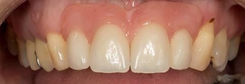 Figure 65. Relined immediate denture replacing maxillary incisors fitted 5 months after extraction. Apologises for lipstick on teeth and staining on UL3.