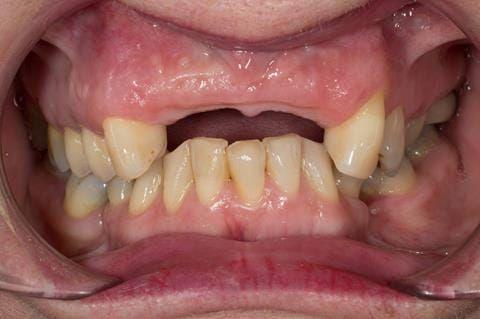 Figure 110. Edentulous ridge 12 months post extraction.