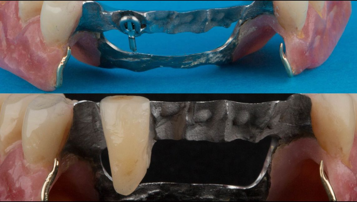 Addition of a prosthetic tooth onto the dental bar in the event of a natural support tooth failing.