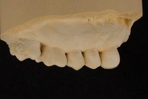 Figure 60. Reline cast.