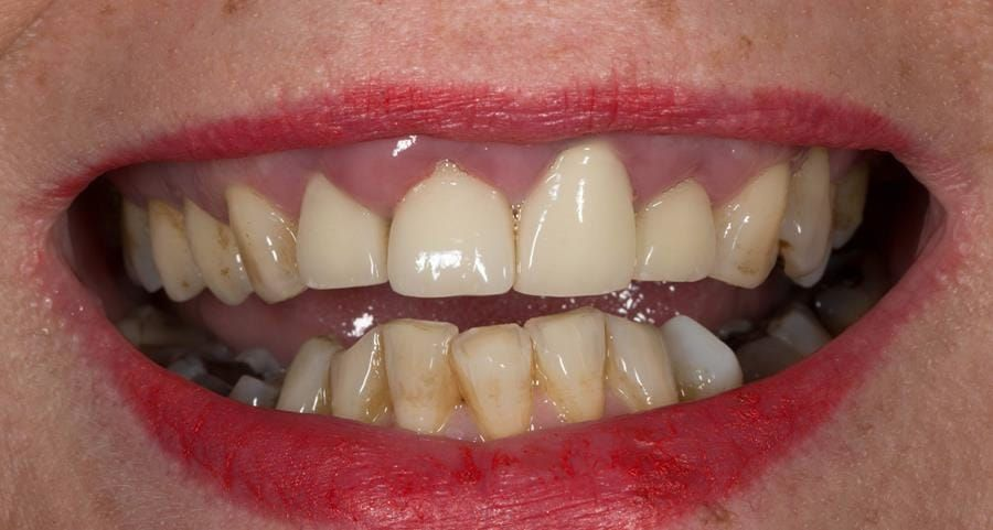 Figure 2. Pre-treatment showing high smile line and aesthetically poor upper incisors