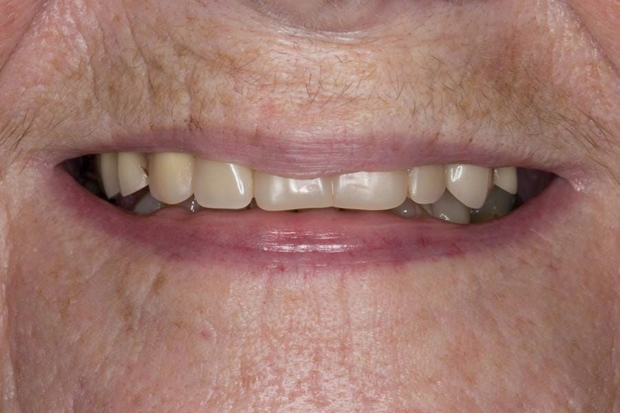 Figure 2. Pre-treatment with poorly fitting cobalt chromium based maxillary partial denture