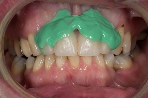 Figure 52. Immediate denture laboratory reline - part 1 with light bodied silicone impression material (Doric Flo light - Schottlander).