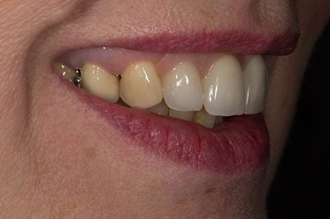Figure 69. Immediate denture at 11 months post extraction. Ready to start making definitive cobalt chromium based partial denture.