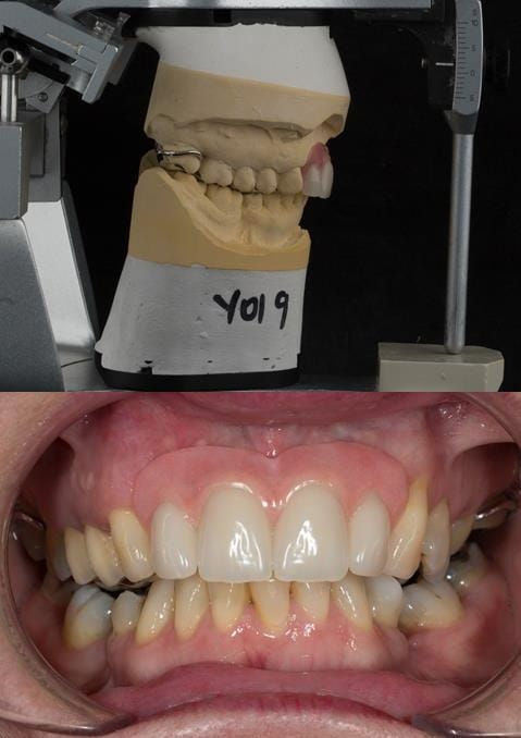 Figure 111. Fitted cobalt chromium based maxillary partial denture replacing upper 2-2 in intercuspal position. Schottlander Enigmalife teeth.