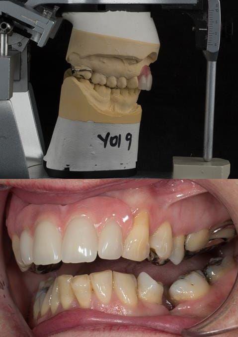 Figure 117. Fitted cobalt chromium based maxillary partial denture with teeth apart. Schottlander Enigmalife teeth.
