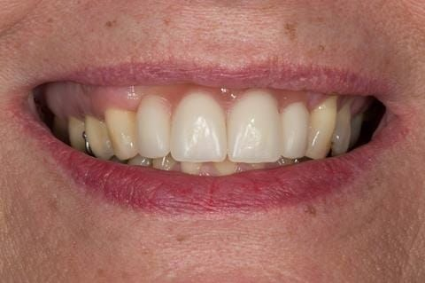 Figure 50. Chair-side reline appointment - 3 months after extractions. The Ufi gel Hard - Voco has been polished and denture fitted. A laboratory reline was scheduled for 5 months post extraction.