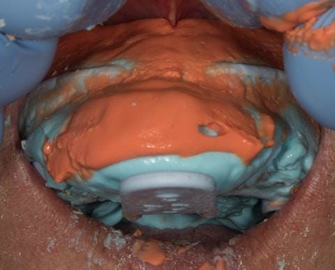 Figure 16. Maxillary primary impression made in two stages using Accudent XD, Ivoclar. This allows full extension to record the sulcus.