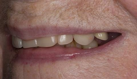 Figure 4. Pre-treatment with poorly fitting cobalt chromium based maxillary partial denture
