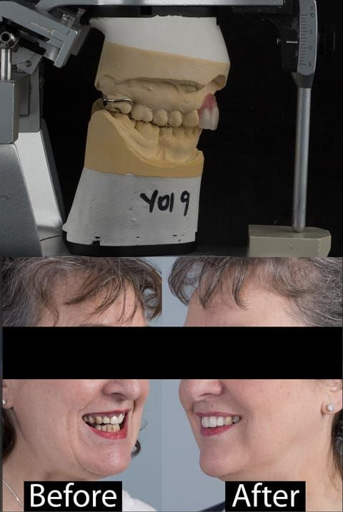 Figure 123. Before and after provision of a cobalt chromium based maxillary partial denture replacing upper 2-2.