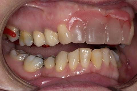 Figure 78. Pattern resin mock up fitted for patient to assess future visible metal. The patient was happy to proceed with the definitive denture design as per Figure 15.