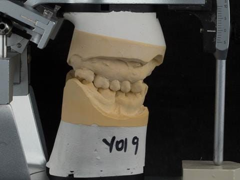 Figure 104. Definitive cast on Denar Mk 2 articulator - maxillary cast mounted using facebow transfer and mandibular cast mounted in intercuspal position.