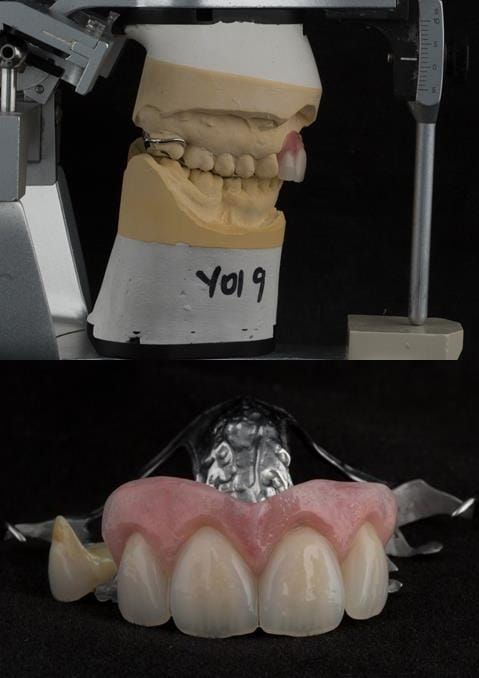 Figure 128. Cobalt chromium based maxillary partial denture from a different case of similar design. The upper right first premolar required removal at a later date. Dental bar designed using a laser welded tag to support the artificial tooth.