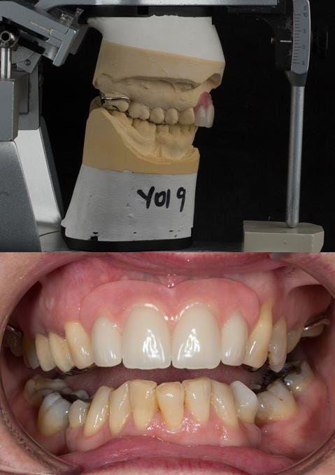Figure 109. Fitted cobalt chromium based maxillary partial denture replacing upper 2-2 with teeth apart. Schottlander Enigmalife teeth.