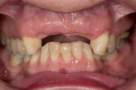 Figure 42. Three months after extractions - ridge remodelling/shrinkage.