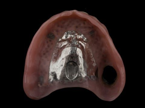 """Figure 66. Definitive denture finished with Molloplast B """"O"""" ring around UR7"""