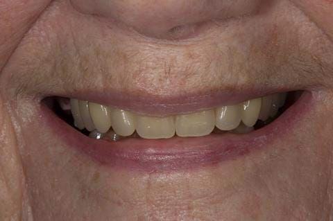 Figure 60. Visit 4 Teeth wax try in with Schottlander Enigmalife teeth in mouth.
