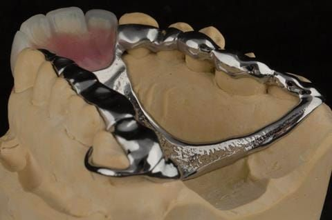 Figure 103. Finished cobalt chromium based maxillary partial showing clearance around the gingival margins