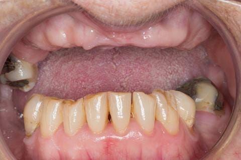 Figure 9. Pre-treatment - irregular mandibular occlusal plane. UR7 - occlusal and buccal amalgam.