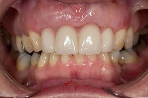 Figure 37. Maxillary immediate denture fitted one week after the extraction appointment. Schottlander Enigmalife teeth.