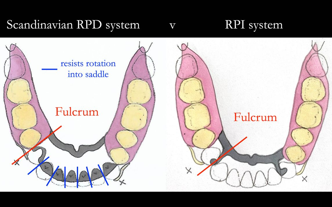 Scandinavian approach versus RPI system demonstrating the engineering advantage of the Scandinavian system.