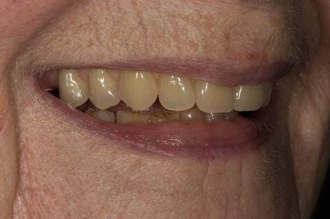 Figure 81. Visit 5 Fitted definitive denture - Schottlander Enigmalife teeth