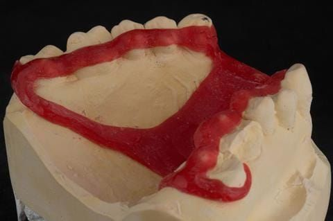 Figure 85. Pattern resin framework prototype of the cobalt chromium connectors to verify fit and occlusal relation - showing clearance around the gingival margins.