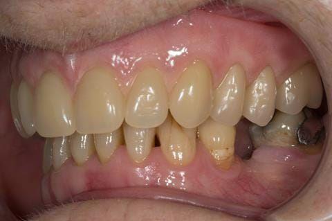Figure 78. Visit 5 Fitted definitive denture - Schottlander Enigmalife teeth