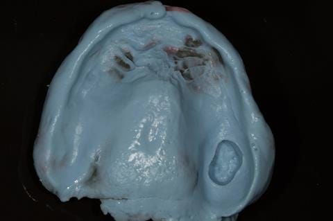 Figure 29. Maxillary special tray definitive impression made in alginate (Dentsply Blueprint) recording depth and width of sulcus.