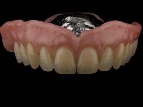 Figure 63. Definitive denture finished - Schottlander Enigmalife teeth