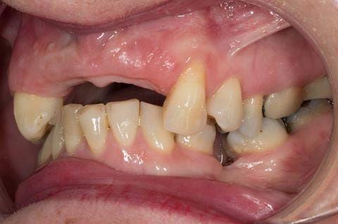 Figure 114. Edentulous ridge 12 months post extraction.