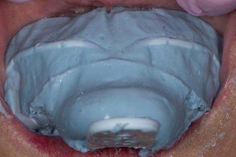 Figure 55. Immediate denture laboratory reline - part 2 alginate over impression in stock tray. Blueprint Dentsply.